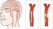 Vector illustration ofbrain stroke. Cerebral infarction