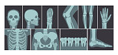 Vector illustration set of many X-rays shots of human body, X-ray pictures of head, hands, legs and other parts of body on white background.