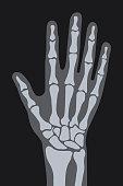 vector x-ray hand