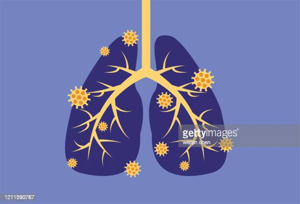 virus infects lungs stock illustration - epidemic stock illustrations
