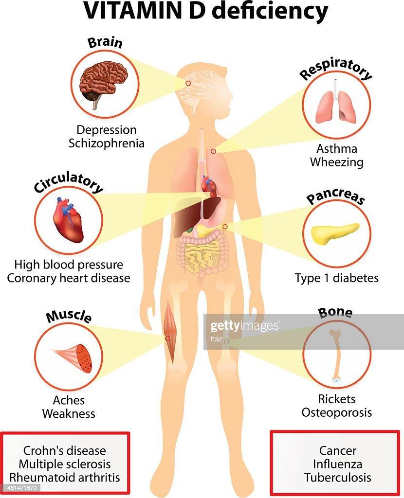 Vitamin D deficiency. symptoms and diseases