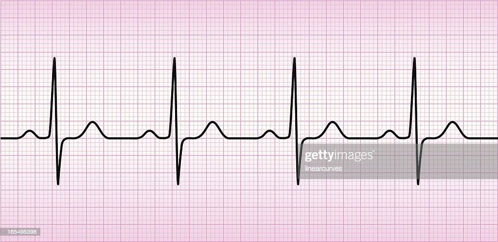 Onda del ECG : Ilustración de stock