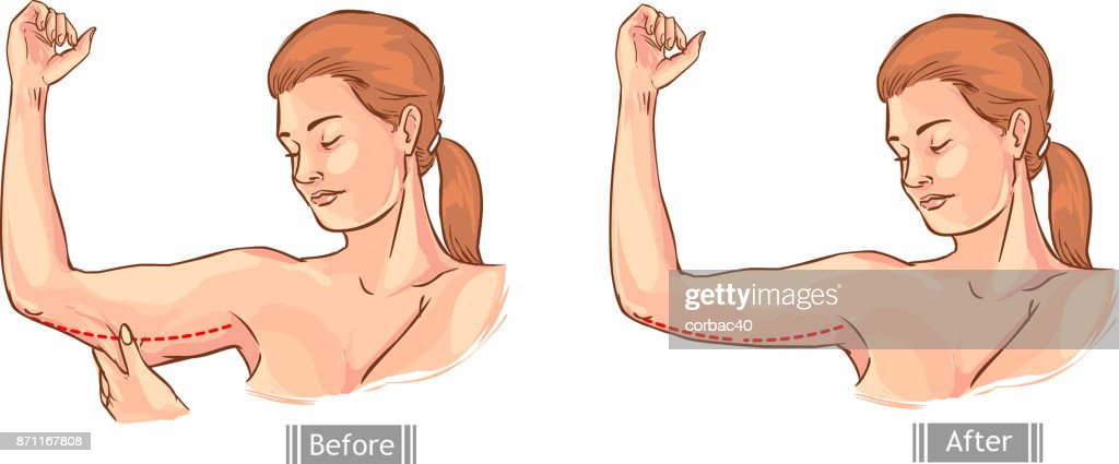 white background vector illustration of a loose handle