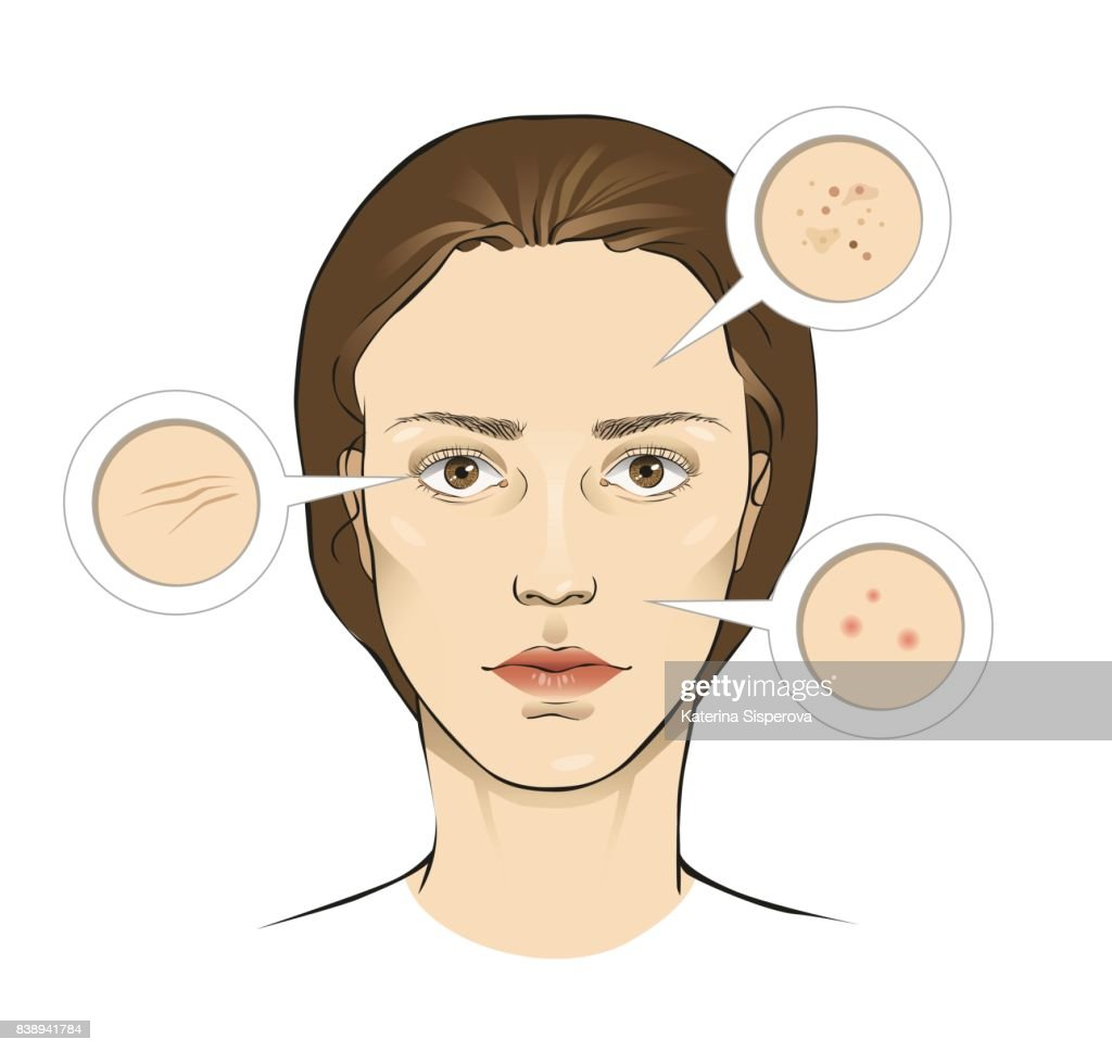 Woman's face skin problems vector illustration with close ups - wrinkles, freckles, pimples