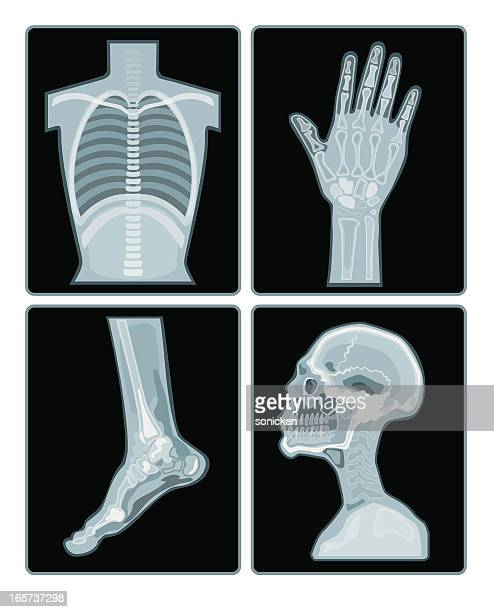 x-ray films collection - x ray image stock illustrations