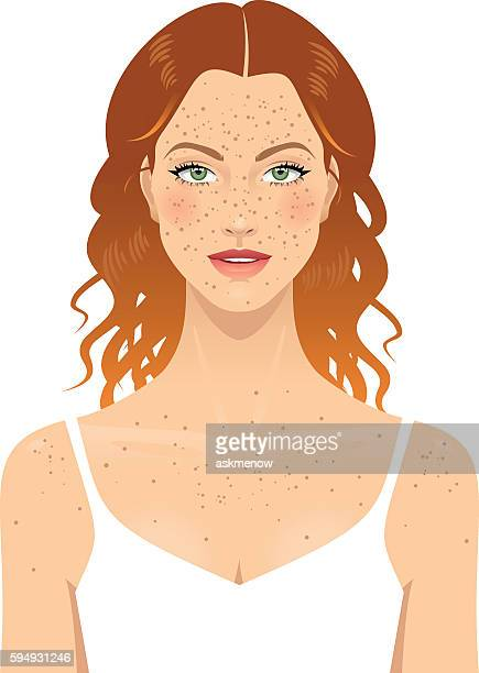 Young woman's face with freckles
