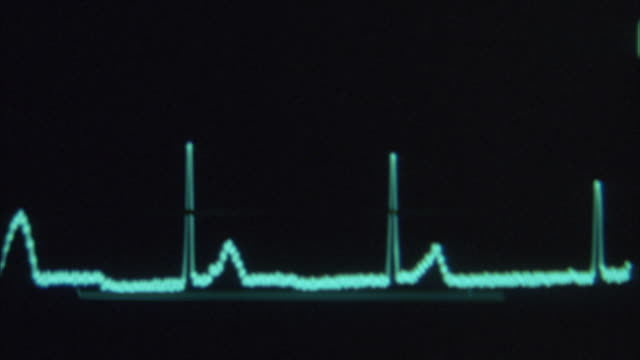close angle of cardiogram of medical equipment or cardiac monitor or heart monitor measuring heart beat. cardiogram waves oscillate up and down and flattens at end. glare from light reflects on cardiogram in beginning. camera shakes throughout. insert. - ambulance stock videos & royalty-free footage
