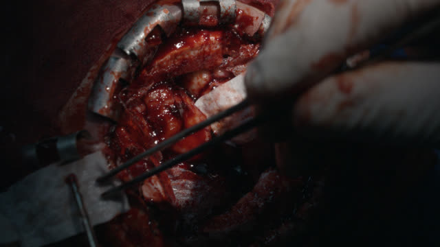 close angle of opened human skull with brain exposed. brain pulsating. brain is poked and prodded by latex gloved hands. human trauma. neurosurgery. brain hemorrhages. hospital. skull fractures. operating rooms.  doctors. surgeons. - neurosurgery stock videos & royalty-free footage