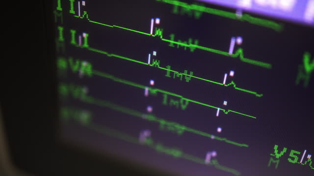 ecg - pulse trace stock videos & royalty-free footage
