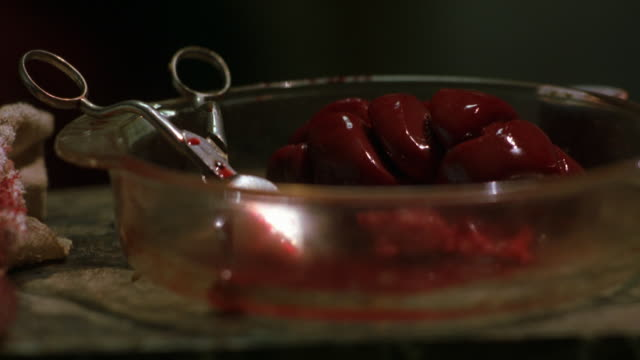 CLOSE ANGLE OF HUMAN INTERNAL ORGAN, POSSIBLY KIDNEY, IN GLASS DISH WITH SURGICAL TOOL SCISSORS AND BLOODY TOWEL. SURGERIES. GORE.