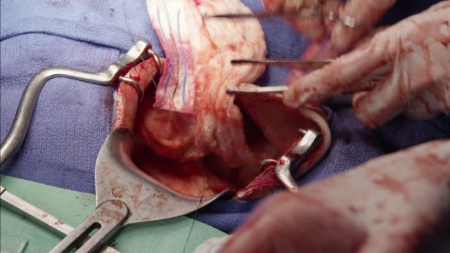 close angle of hands performing surgery or operation on patient. blood. medical equipment. - operating stock videos & royalty-free footage