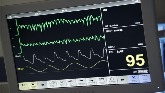 vídeos de stock, filmes e b-roll de close angle of medical equipment, heart monitor flatlining. - batimento cardíaco