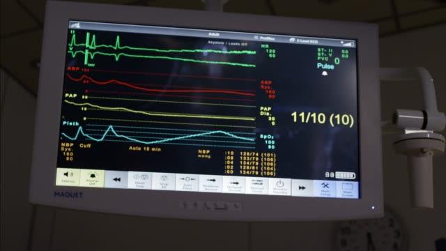vídeos de stock, filmes e b-roll de close angle of heart monitor. medical equipment. flatline. - ritmo cardíaco
