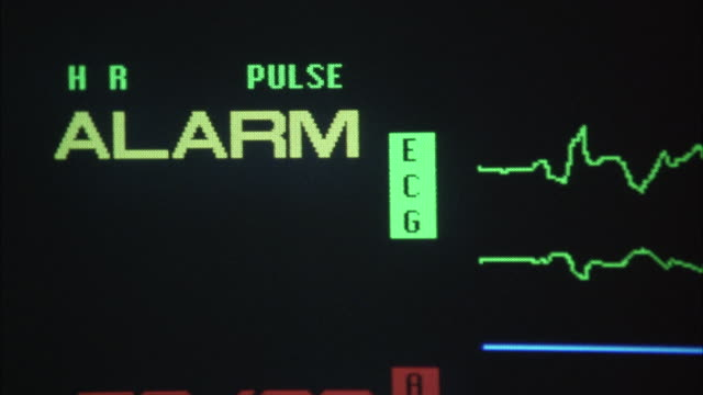 "close angle of screen of medical equipment monitoring human body temperature. see big red letters ""alarm"" on top left of screen. insert. - inserting stock videos & royalty-free footage"
