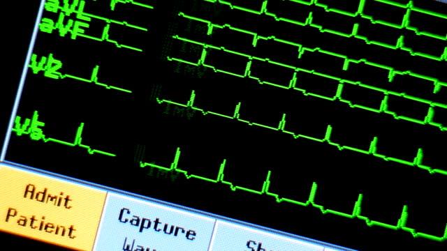 vídeos de stock, filmes e b-roll de ecg - sistema de condução cardíaco