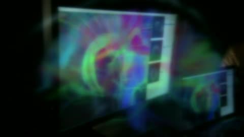 vídeos y material grabado en eventos de stock de nnbm809y) - enfermedad de alzheimer