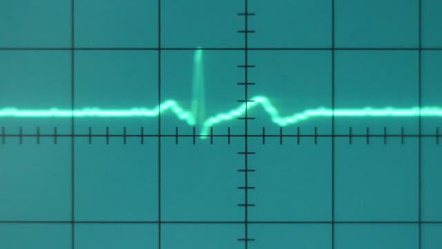 ecg - oscilloscope stock videos & royalty-free footage