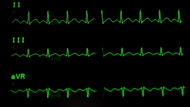 ekg - pulsating stock videos and b-roll footage