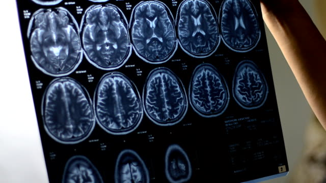 vídeos de stock, filmes e b-roll de mri - tumor cerebral