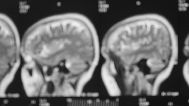 mri - mri scanner stock videos and b-roll footage