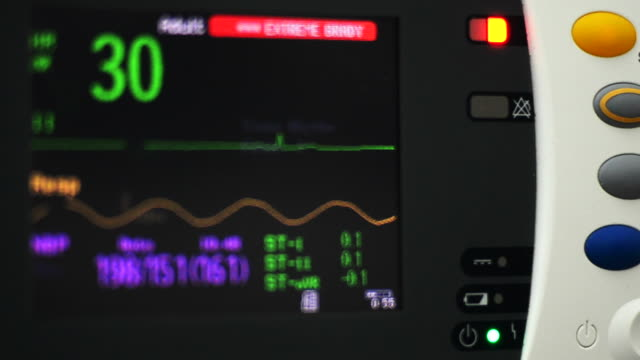 ecg - medical test stock videos & royalty-free footage