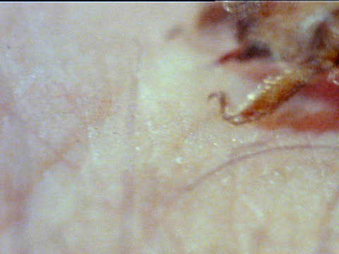 back of squirming bee on human flesh abdomen stinger barb of stinger sticking into flesh bee pulling away stinger pulling out of bee body leaving... - stechen stock-videos und b-roll-filmmaterial
