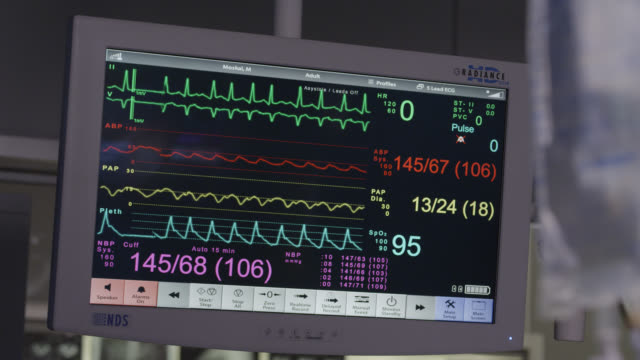 close angle of medical monitor or equipment. - pulse trace stock videos & royalty-free footage