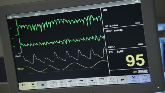 vídeos de stock, filmes e b-roll de close angle of medical equipment, heart monitor flatlining. - ritmo cardíaco