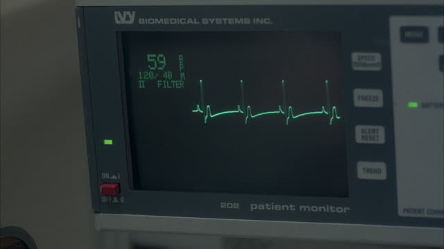 close angle insert of heart rate monitor. screen shows 59 bpm with the dashes for each heartbeat scrolling by. see number go down quickly and flatline at 0 bpm. see line go flat on screen. see <10 bpm begin flashing on screen along with hr low. - inserting stock videos & royalty-free footage