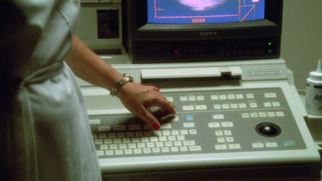 medium angle of nurse pressing buttons on keyboard to sonogram or ultrasound machine. pans up to video on monitor of baby or fetus inside womb. only see side of nurse. - ultrasound scan stock videos & royalty-free footage