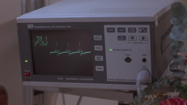 vidéos et rushes de close angle of heart monitor at hospital. monitor reads 59, 120/40. heart beat slows and stops, death. neg cut. insert. - rythme cardiaque