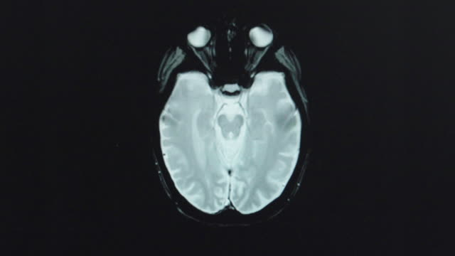 BRAIN - TOP VIEW SCAN ON COMPUTER