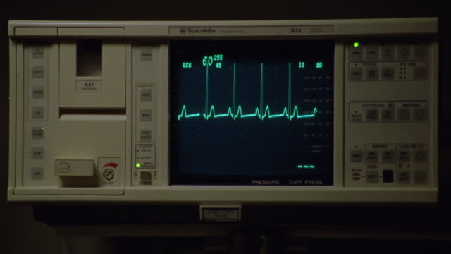 close angle of heart monitor or medical equipment with cardiograph screen in center at 60. graph rapidly fluctuates down to 18 and back to 49. hand pushes button on right bottom corner twice. insert - pulse trace stock videos & royalty-free footage