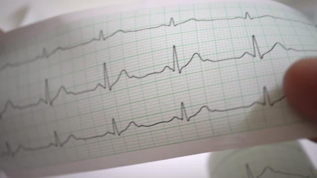 vídeos y material grabado en eventos de stock de el ecg - órgano interno humano