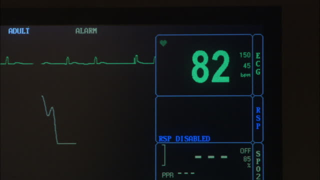 vídeos de stock, filmes e b-roll de medium angle of hospital heart monitor with black background and blue and green text. see text at top read adult and auto reset. - ritmo cardíaco