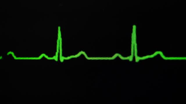ekg - lyssna på hjärtslag bildbanksvideor och videomaterial från bakom kulisserna