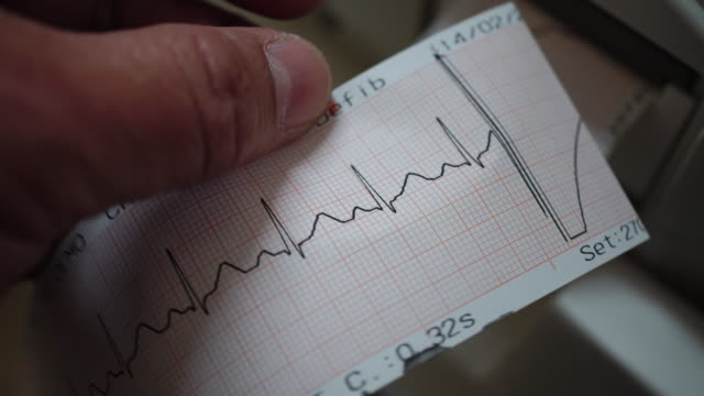 ecg - defibrillator stock videos and b-roll footage