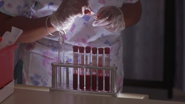 close angle of seven vials filled with blood are set in holder. nurse's hands in latex gloves as she writes in red pen on vial filled with red substance. she walks out of the scene. - latex stock videos & royalty-free footage