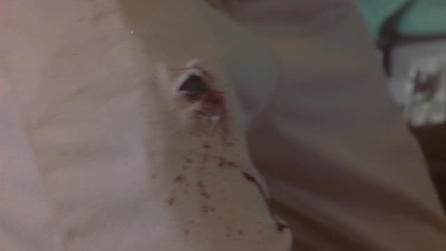 vídeos de stock, filmes e b-roll de close angle of person shot in leg. wound appears in thigh and drips blood. could be in attack or battle. gunfire and bullets. special effects. - efeito especial