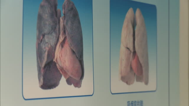 may 2, 2010 montage graphics of lungs and lung cancer warning signs posted on the wall and freestanding and a no smoking sign written in both chinese... - no smoking sign stock videos & royalty-free footage