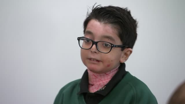 12yearold Fazeel Irfan helping raise awareness of rare skin condition Epidermolysis Bullosa ENGLAND INT Various of Fazeel Irfan giving speech to his...