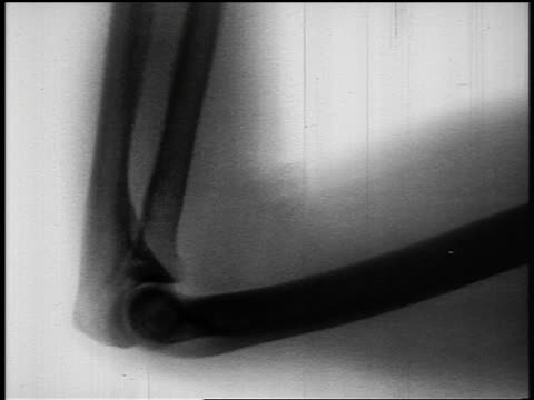 B/W 1950s close up x-ray of arm bones bending at elbow joint
