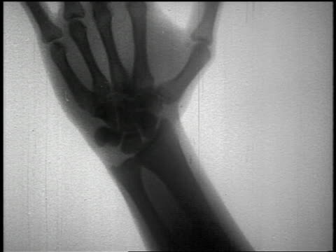 B/W 1950s close up x-ray of hand + arm bones bending at wrist joint