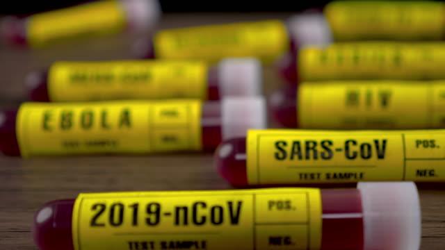 vídeos de stock e filmes b-roll de 2019-ncov (covid-19) blood sample test tube on wooden table, dolly shot, 4k - hiv