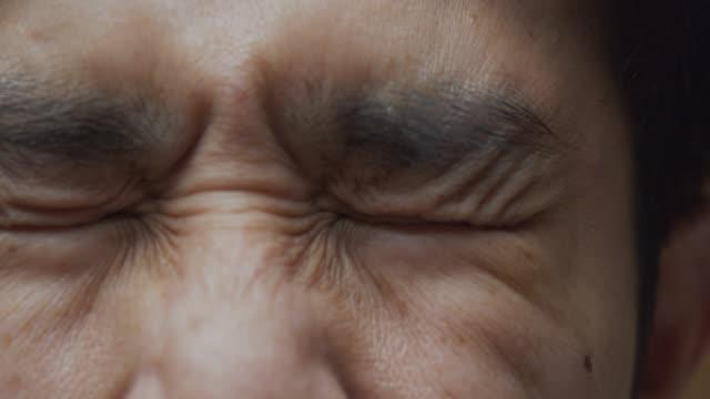 stockvideo's en b-roll-footage met 4k beelden van de aziatische man gevoel moe en pijn op zijn oog. wrijft zijn ogen, close-up te bekijken - chronische ziekte