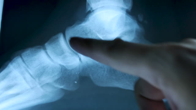 4k x ray film with doctor's hand, dolly shot - bone stock videos & royalty-free footage