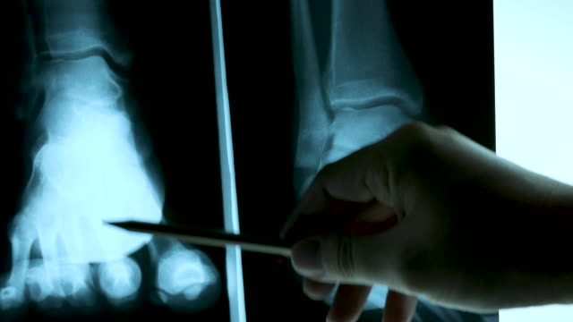 4k x ray film with doctor's hand, dolly shot - human spine stock videos & royalty-free footage