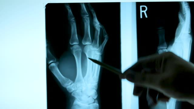 4k x ray film with doctor's hand, dolly shot - medical x ray stock videos & royalty-free footage