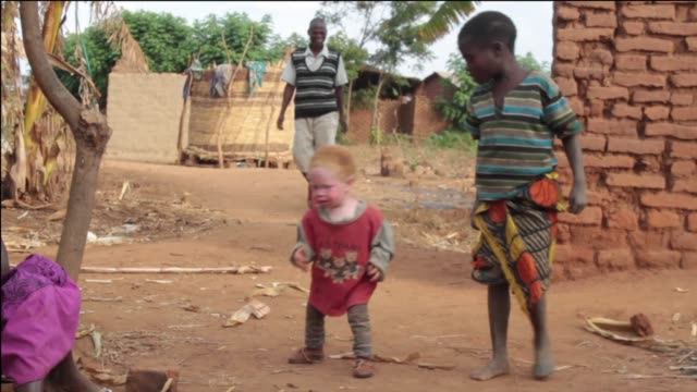 Abductions of people with Albinism are common in Malawi because of myths that Albino bones bring good luck