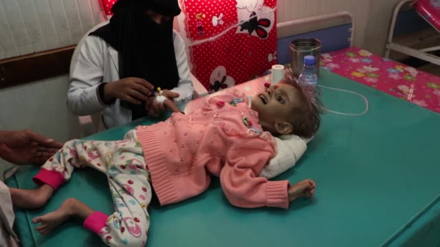 about 1.8 million yemeni children under the age of five suffer from acute malnutrition, and the lives of 400,000 severely affected children are under... - yemen bildbanksvideor och videomaterial från bakom kulisserna